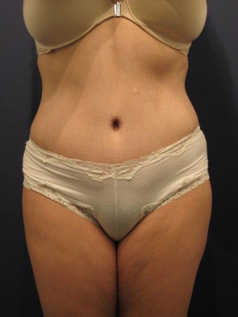 tummy tuck with waist liposuction after 407304