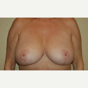 45-54 year old woman treated with Breast Lift after 3799031