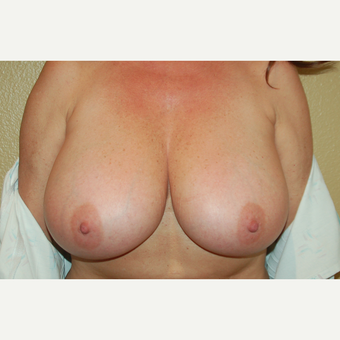 45-54 year old woman treated with Breast Lift before 3799031