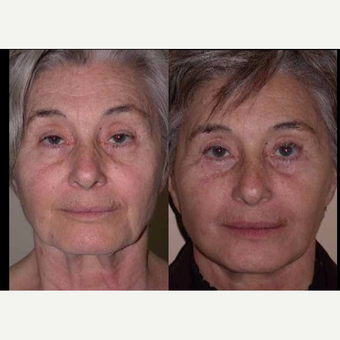 55-64 year old woman treated with Facelift before 3602532