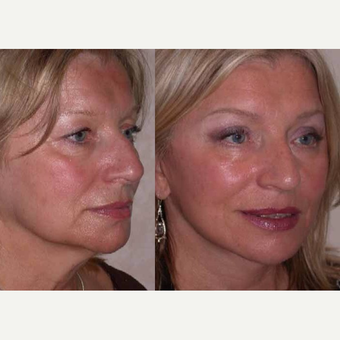 55-64 year old woman treated with Facelift after 3602532