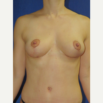45-54 year old woman treated with Breast Lift after 3136102