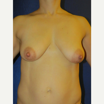 45-54 year old woman treated with Breast Lift before 3136102