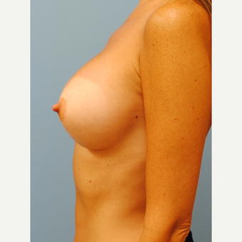 37 year old with significant breast asymmetry after 3129130