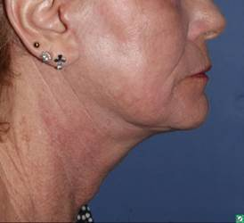 67 year old, face and neck lift with laser resurfacing