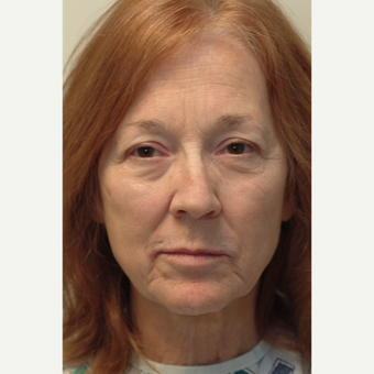 65-74 year old woman treated with Neck Lift before 3763972
