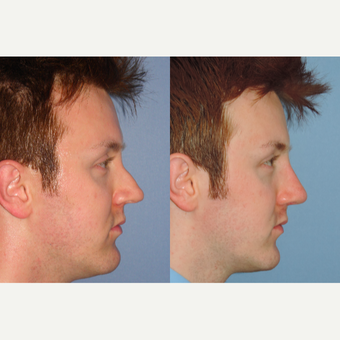25-34 year old man treated with Revision Rhinoplasty before 3521824