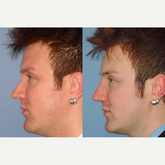 25-34 year old man treated with Revision Rhinoplasty after 3521824