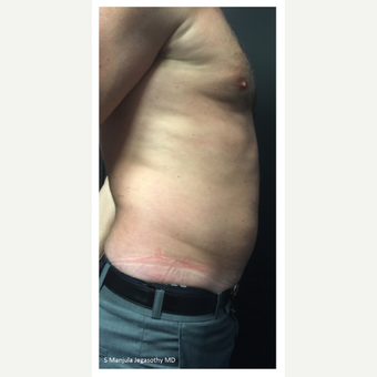 Abdomen Fat Treated with Kybella® Injection after 2503987