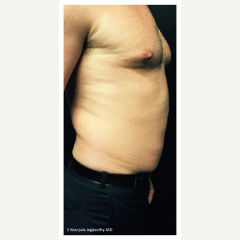 Abdomen Fat Treated with Kybella® Injection before 2503987