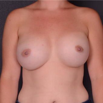 25-34 year old woman treated with Breast Implants after 3738135
