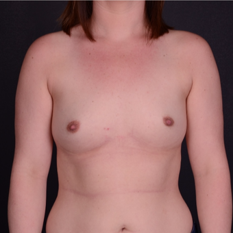 25-34 year old woman treated with Breast Implants before 3738135