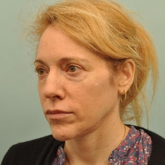 45-54 year old woman treated with Liquid Facelift before 2202507