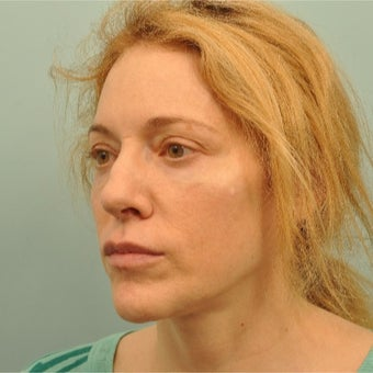 45-54 year old woman treated with Liquid Facelift after 2202507