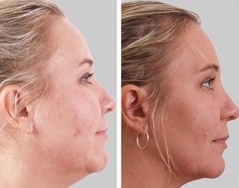Exilis- Neck and Full Face  before 1485885