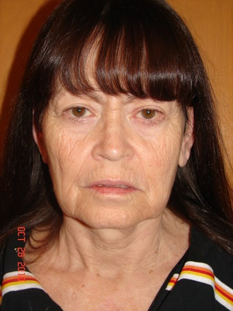 65 year old female desiring facial rejuvenation  before 779618