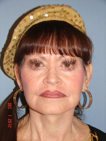 65 year old female desiring facial rejuvenation  after 779618