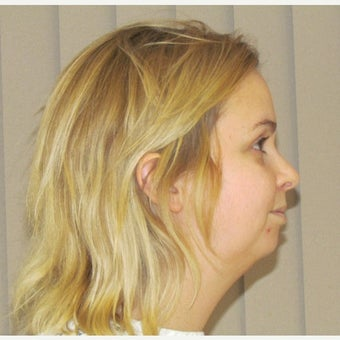 25-34 year old woman treated with Chin Surgery before 2473050