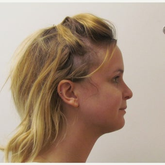 25-34 year old woman treated with Chin Surgery after 2473050