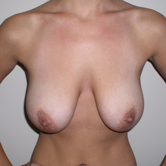 24 year old woman treated with Breast Lift before 3482479
