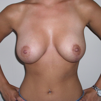 24 year old woman treated with Breast Lift after 3482479