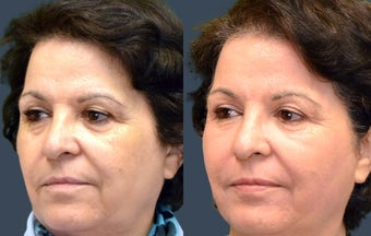 Facial Fat Grafting & Laser Resurfacing