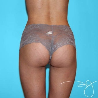 25-34 year old woman treated with Butt Augmentation after 1899745