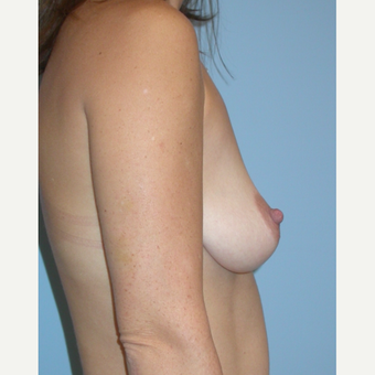 25-34 year old woman treated with Breast Implants before 3070972