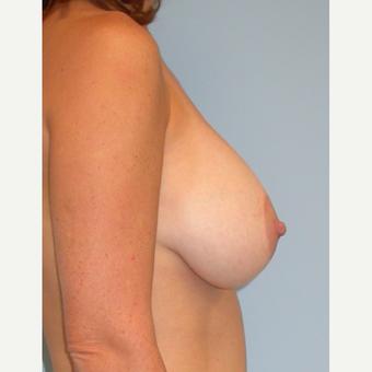 25-34 year old woman treated with Breast Implants after 3070972