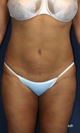 45-54 year old woman treated with Liposuction after 1683530