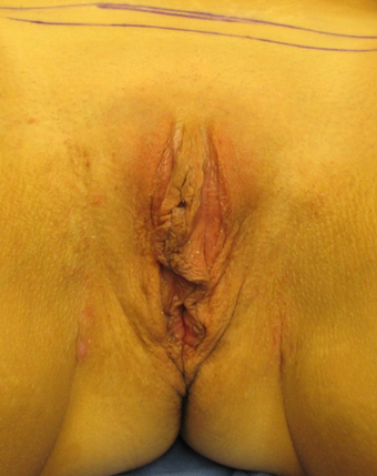 38 year old woman treated with Labiaplasty before 2989774