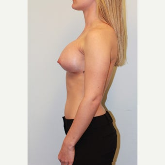 18-24 year old woman treated with Breast Augmentation after 3026730