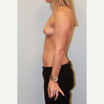 18-24 year old woman treated with Breast Augmentation before 3026730
