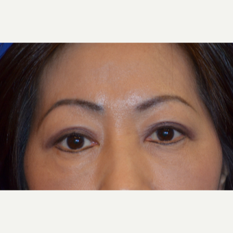 55-64 year old woman treated with Asian Eyelid Surgery after 2984399