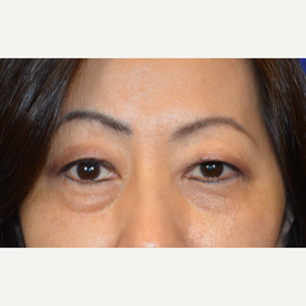 55-64 year old woman treated with Asian Eyelid Surgery before 2984399