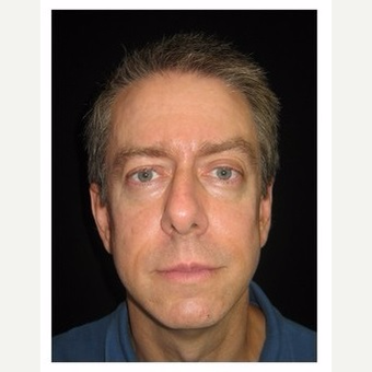 45-54 year old man treated with Non Surgical Face Lift after 3180988