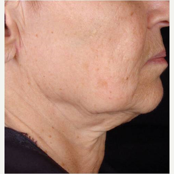 Female with chin laxity treated with TITAN laser before 3175485