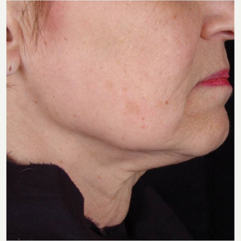Female with chin laxity treated with TITAN laser after 3175485