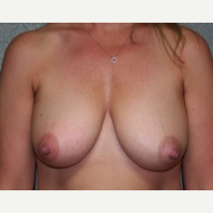 25-34 year old woman treated with Breast Lift before 3339746