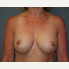 25-34 year old woman treated with Breast Lift after 3339746
