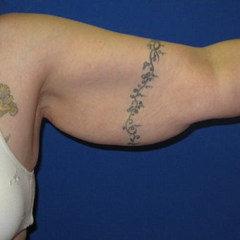 35-44 year old woman treated with Arm Lift 1919727