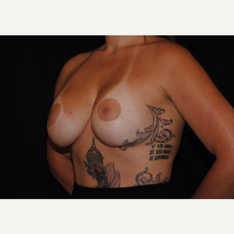 25-34 year old woman treated with Breast Lift with Implants after 3095114