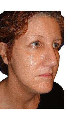 Facelift, necklift, upper & lower blepharoplasty, rhinoplasty 401079