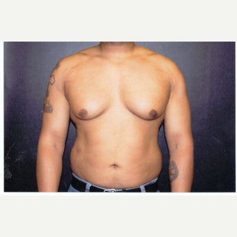 25-34 year old man treated with Male Breast Reduction before 1539954