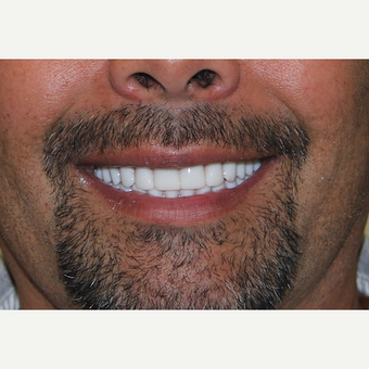 All-on-4 Dental Implants after 2390058