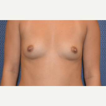 25-34 year old woman treated with Breast Augmentation before 3816618