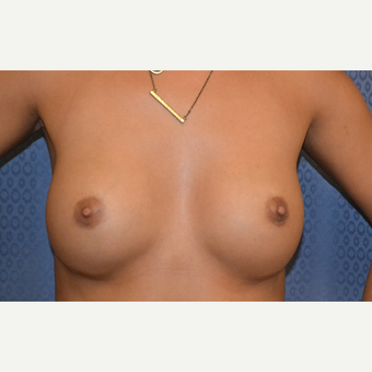 25-34 year old woman treated with Breast Augmentation after 3816618