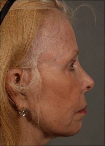 73 Year Old after facial volume restoration & lifting with Juvederm Voluma  1348117