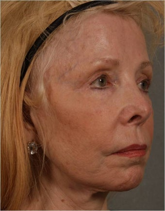 73 Year Old after facial volume restoration & lifting with Juvederm Voluma  after 1348117