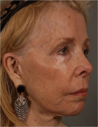 73 Year Old after facial volume restoration & lifting with Juvederm Voluma  before 1348117